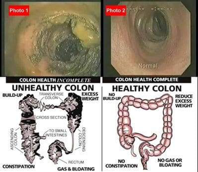Your colon affects your health