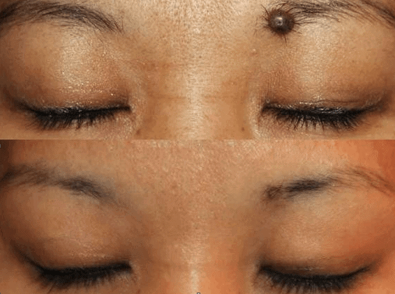 Apple cider vinegar to remove moles